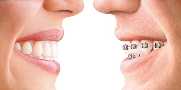orthodontics tacoma