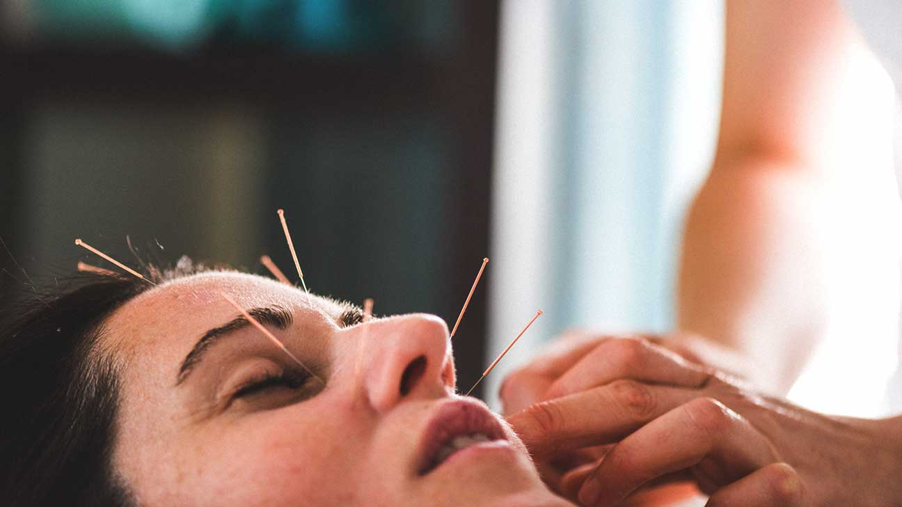 Where to and the best Purchase Acupuncture Needles