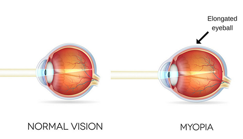 My Kids Vision
